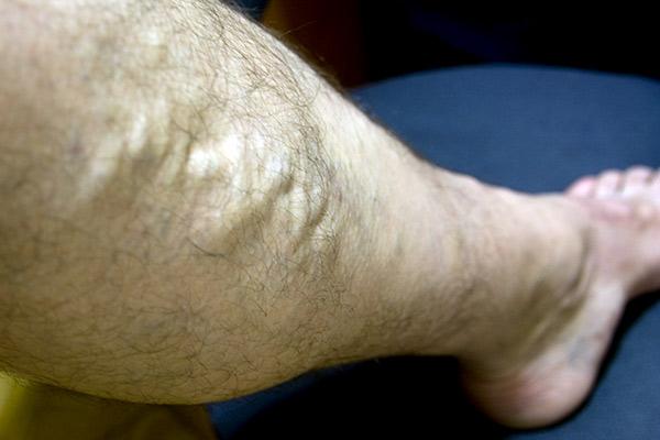 Los tipos de las operaciones a las venas de los pies
